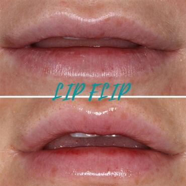 LipFlip.jpg